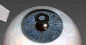 Kamra Inlays for Presbyopia