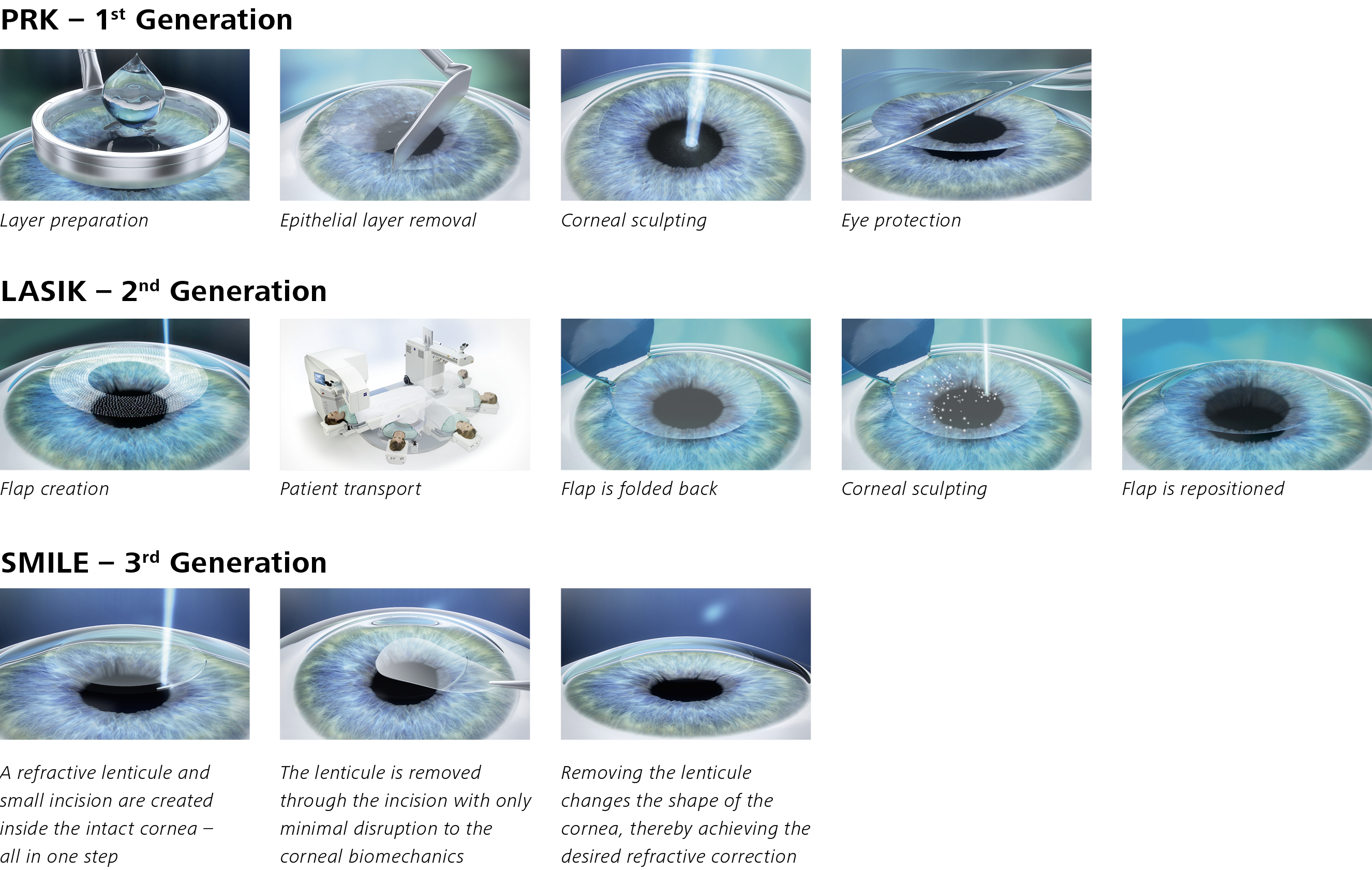 Prk Lasik Smile 3generations Px Education Insight Eye