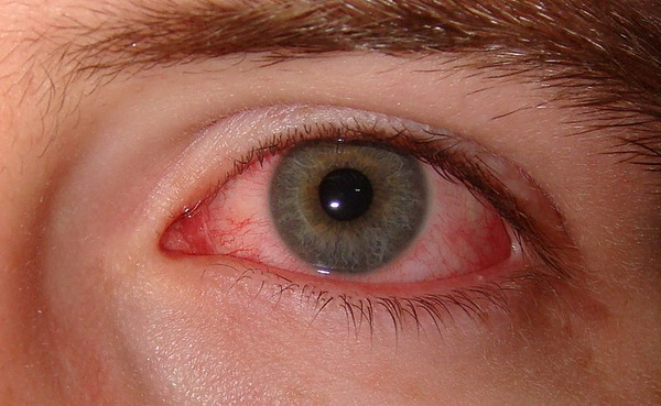 Dry Eye Management and Prevention
