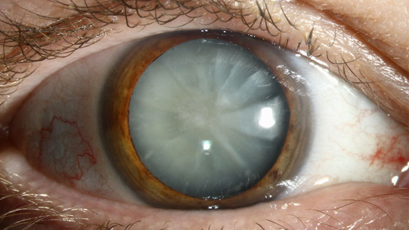 the Different Types of Cataracts