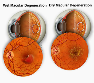 Types of Macular Degeneration
