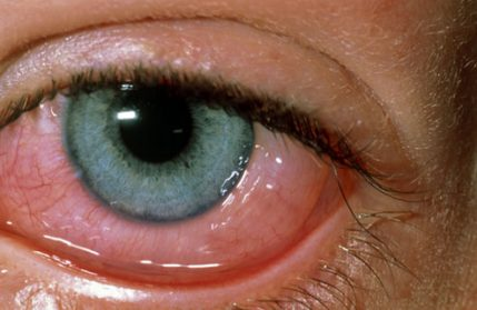 Symptoms, Causes and Treatment for Conjunctivitis
