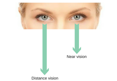 Monovision with Contact Lenses
