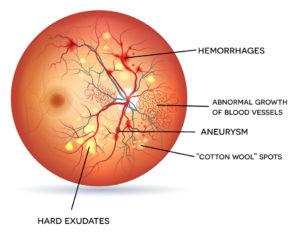 Symptoms of Diabetic Retinopathy