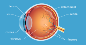 Treatment for Eye Floaters