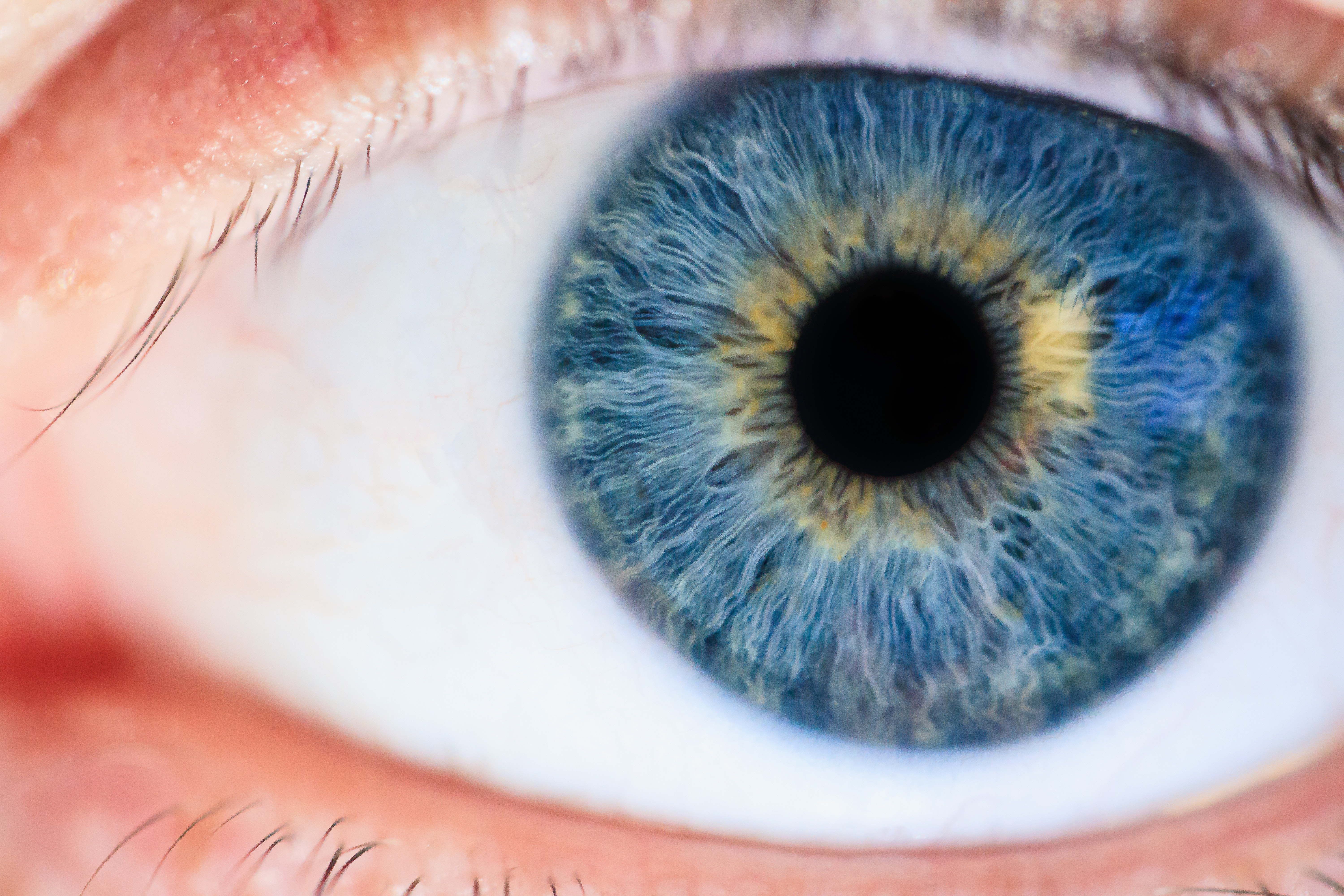 Cataract Surgery Costs And Eligibility Insight Eye Clinic