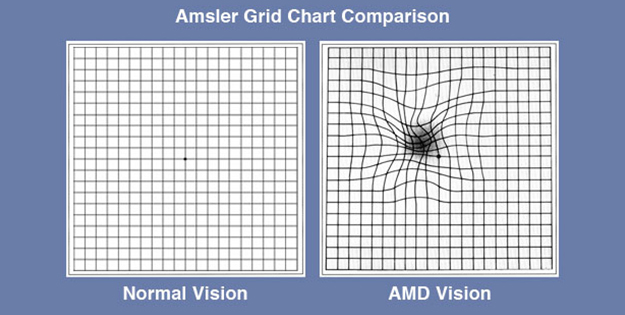 Amsler Grid Chart Comparison