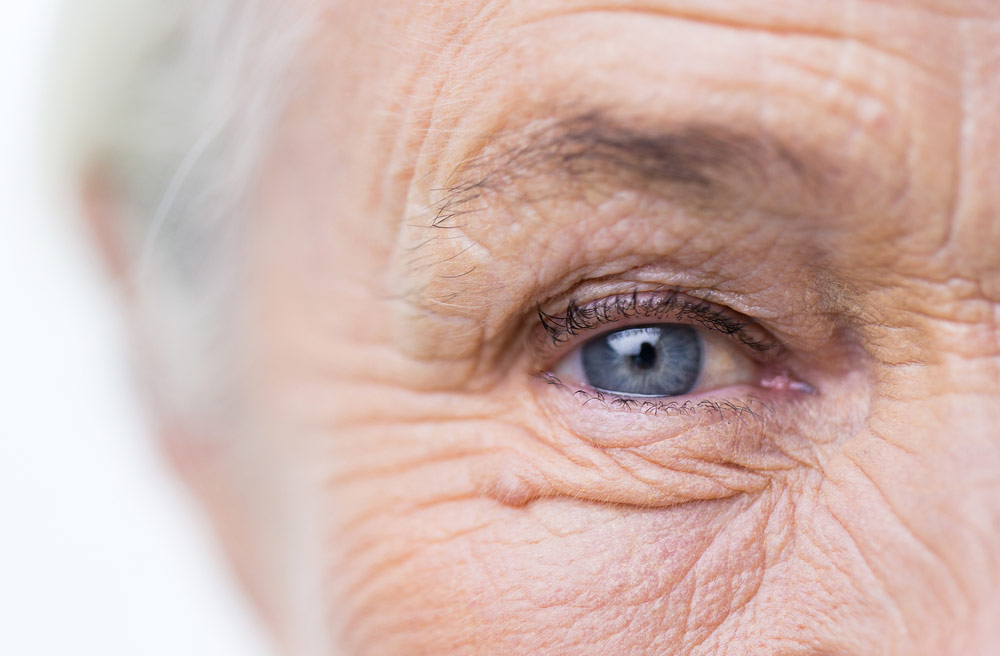 Cataract Eye Surgery Perth