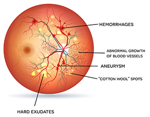 Symptoms of Diabetic Retinopathy