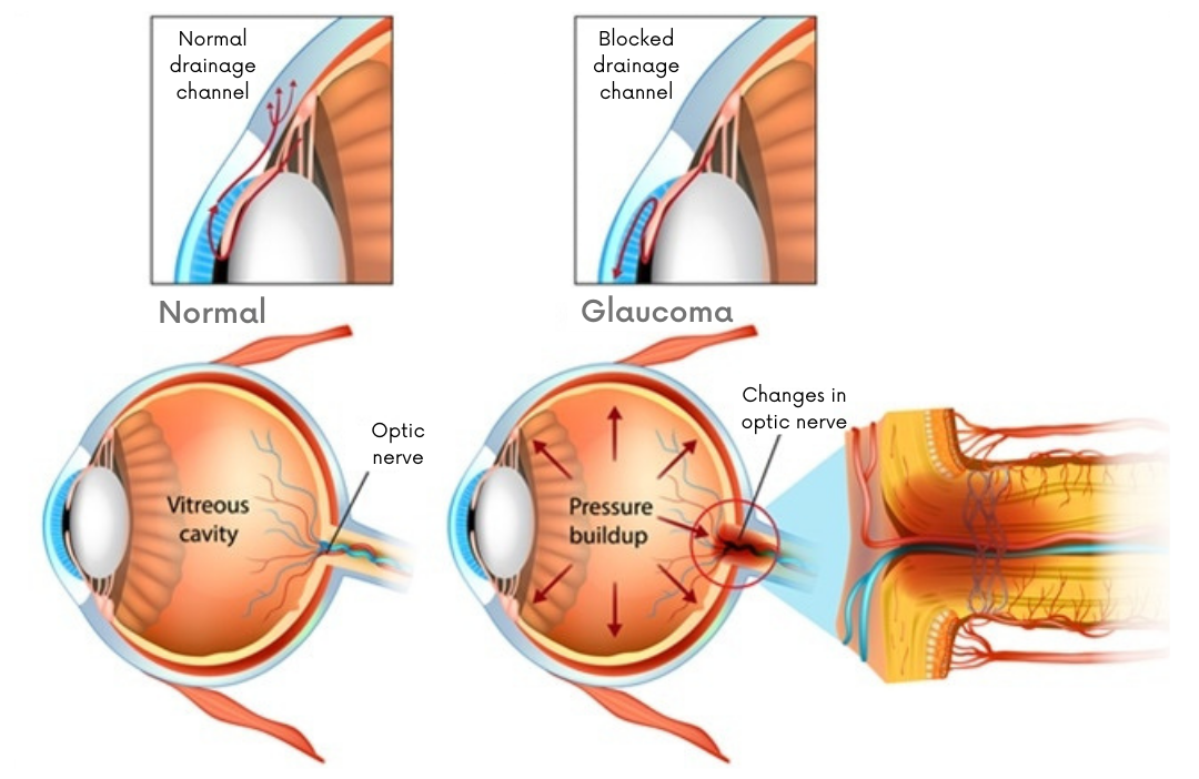 Image demonstrating glaucoma cause